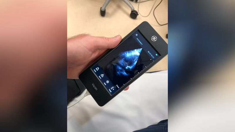 Pikeville Medical Center received three handheld ultrasound devices for emergency and critical...